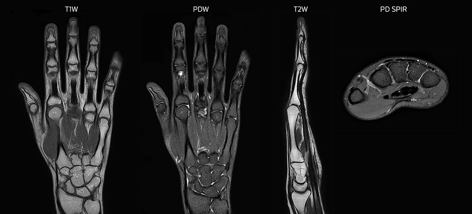 MRI of hand and wrist with large FOV
